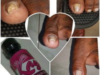 Wart removal and fungus removal services. Facebook Kay's wart removal